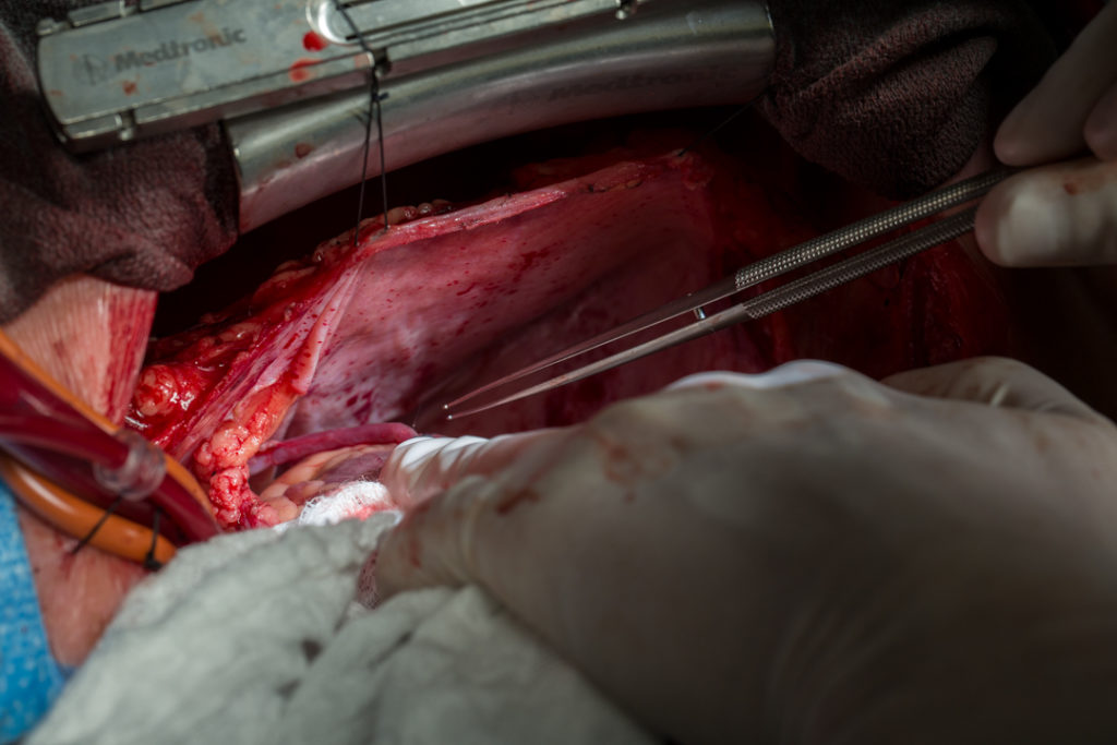 After bypass, Dr. Whitlock checks the newly attached blood vessel for leaks.