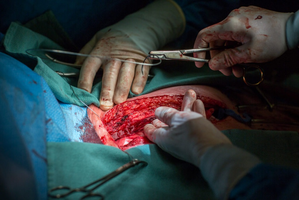 The surgical team uses steel wires to bring the patient's breast bone (sternum) back together.