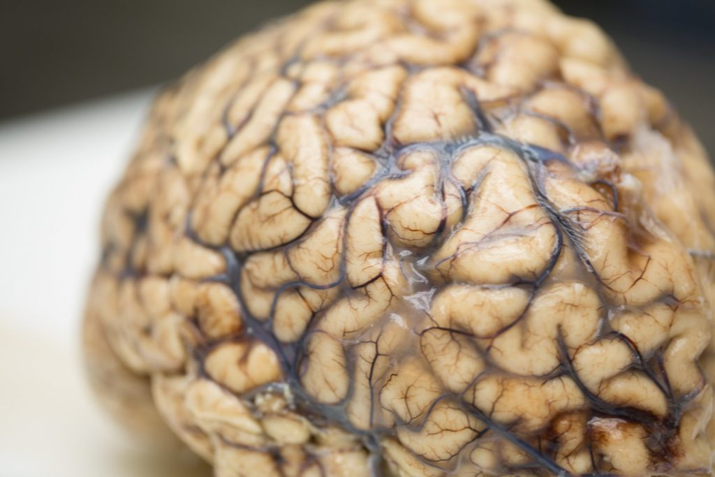 A whole brain on a lab table