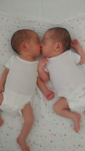 Mono Mono twins share a kiss after birth