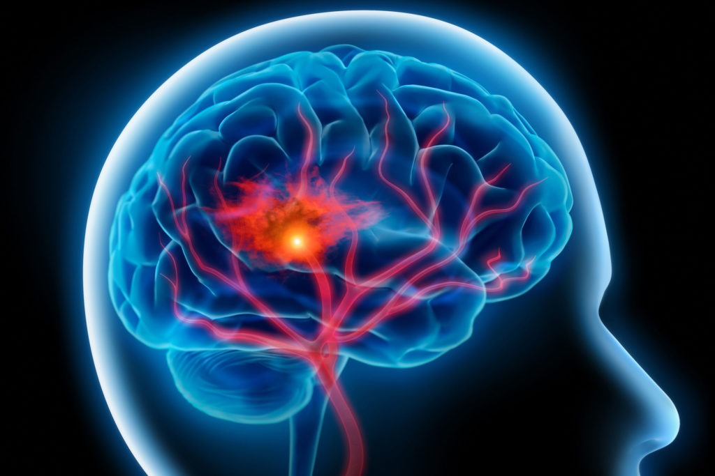 graphic of a stroke occurring in the brain