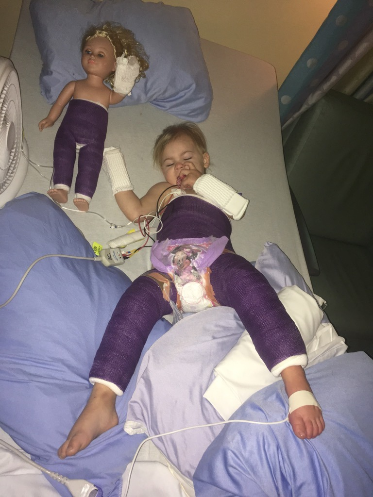 Madison in hospital bed in her cast with casted doll beside her