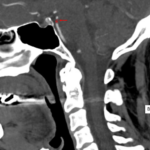 David Dawson stroke scan