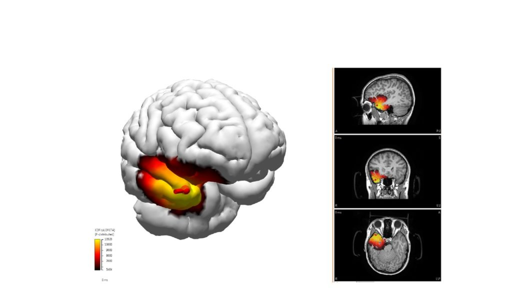 The E-E-G source Imaging software shows a 3-D image of the patients brain and a colour code of where the seizures are located.