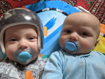 Calvin McKay, wearing the helmet developed at Ron Joyce Children's Health Centre, beside his twin brother Pierce.
